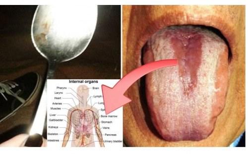 Những dấu hiệu cảnh báo cơ thể đang bị nhiễm độc