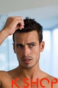 Cách chăm sóc mái tóc nam khỏe khoắn cho bạn trai