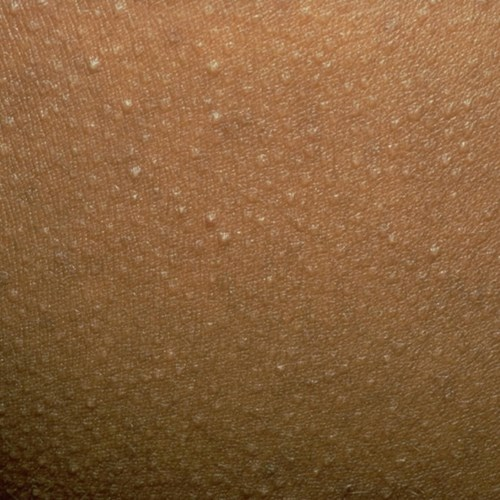 7 loại mụn dù có ngứa tay cách mấy cũng không được nặn