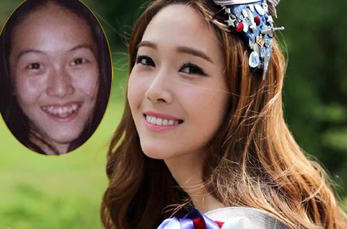 Những mỹ nhân châu á đẹp hơn sau chỉnh răng